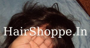 A Hairpiece with Invisifront (TM) technology
