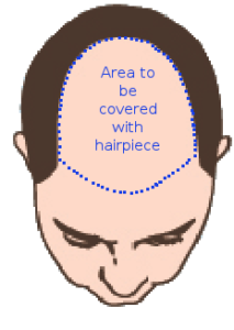 Sketch of normal Male Baldness showing area to be covered by hairsystems